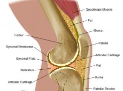 Dolore dietro al ginocchio: cosa lo provoca e quali sono i rimedi?