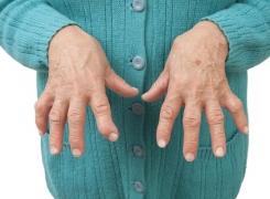Artrite Reumatoide Come si cura e cosa può fare la Fisioterapia