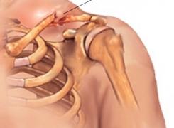Riabilitazione alla spalla in seguito a Operazione Letarjet
