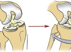 Trattamento fisioterapico per la lesione del legamento crociato posteriore