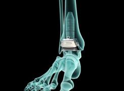 Protesi alla Caviglia Tutto quello prima e dopo l'Operazione
