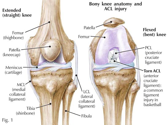 La riabilitazione per la lesione del tendine rotuleo del Ginocchio