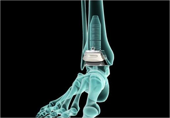 Protesi alla Caviglia Tutto quello che Dobbiamo sapere per l'Operazione
