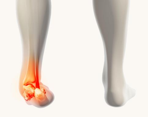 Trattamento fisioterapico della distorsione alla caviglia