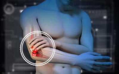 Come curare l'epicondilite con la fisioterapia