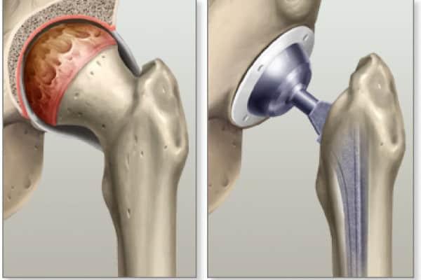 protesi anca